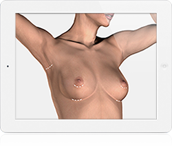 Access Incisions for Breast Enlargement