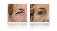 Upper and lower eyelid blepharoplasty; relatively advanced skin laxity related to combination of sun damage and changes associated with ageing, leading to significant lateral hooding for the upper eyelid, festoons of orbicularis muscle distorting the lower