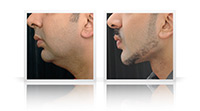 Facial sculpting, chin and jaw implants, anterior neck left.