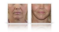 Secondary facelift, Neck lift.
