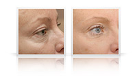 Eyelid lift, cheek lift.