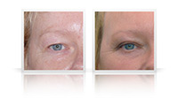 Combination of upper and lower eyelid blepharoplasty surgery.