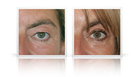Upper and lower eyelid surgery combined with endoscopic brow lift.