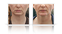Neck Lift, chin implant.