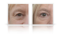 Upper and lower eyelid blepharoplasty.