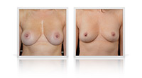 Breast Implants removal, Mastopexy