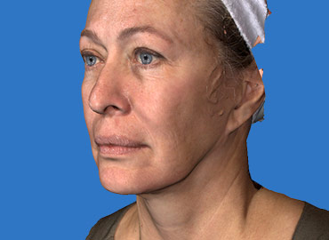 Volumetric Facial Rejuvenation