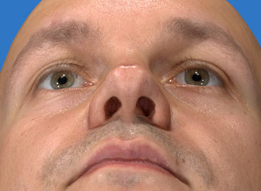 Alar Base Rhinoplasty Simulation