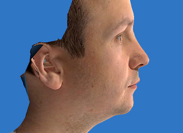 Nasal Length Rhinoplasty Simulation