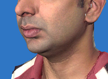 Chin and Jaw Angle Rejuvenation