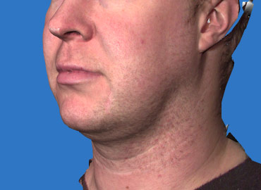 Facial Sculpting 3d Simulation