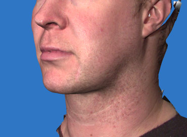 Facial Sculpting 3d Simualtion