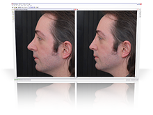2d rhinoplasty simulation