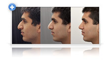 picture example of what nose rhinoplasty looks like