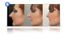 Facial rhinoplasty